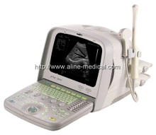 Digital ultrasound imaging system