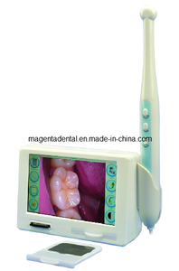 X-ray Film Reader & Intraoral Camera Features