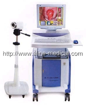 Electronic Colposcope