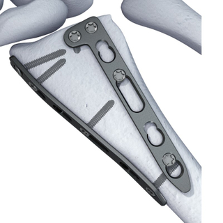 Ulna and Radius Locking Plates