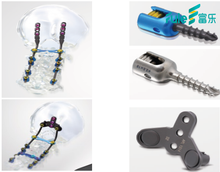 Beijing Fule CFS orthopaedic implants occipital Titanium plates , cervical fixation screws and plates titanium implants